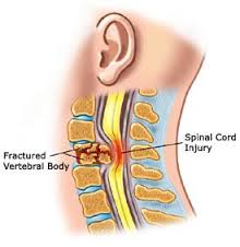 Spinal cord defects